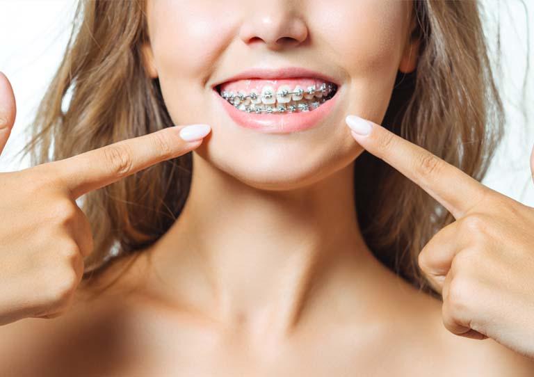 Cuidados tratamiento de ortodoncia. Ortodoncia en Avilés. Clínica Suárez Solís