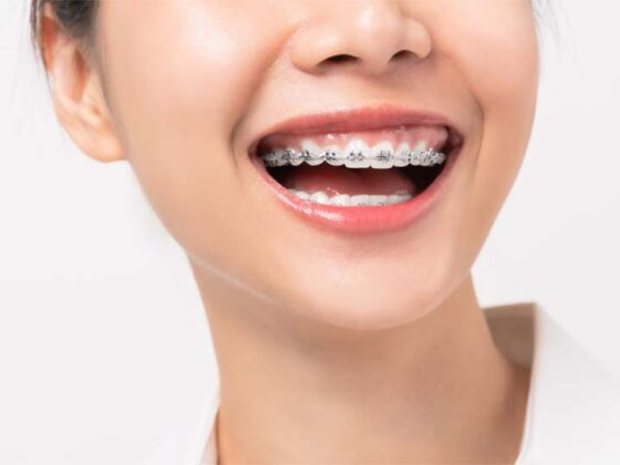 Retenedor de ortodoncia. Dentista en Avilés