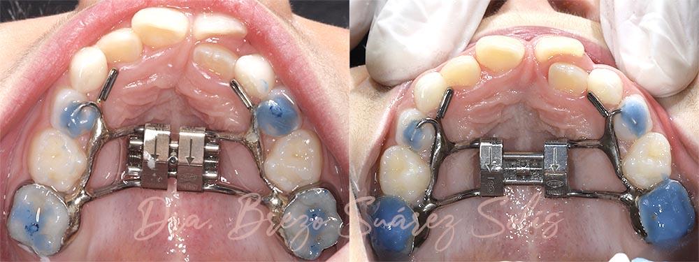 ejemplo disyuntor maxilar