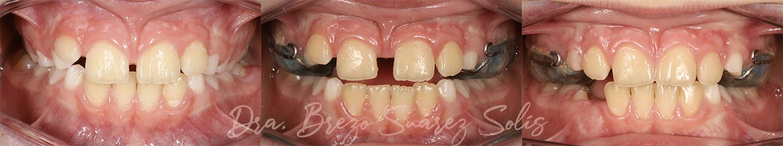 fases disyuntor maxilar