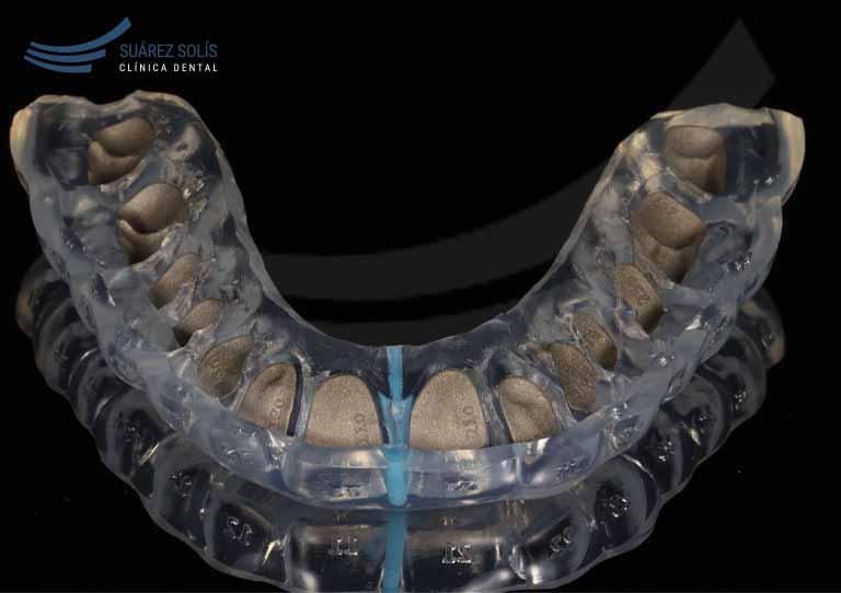 ortodoncia lingual o invisible. invisalign. ortodoncia en Avilés. Dentistas Suárez Solís