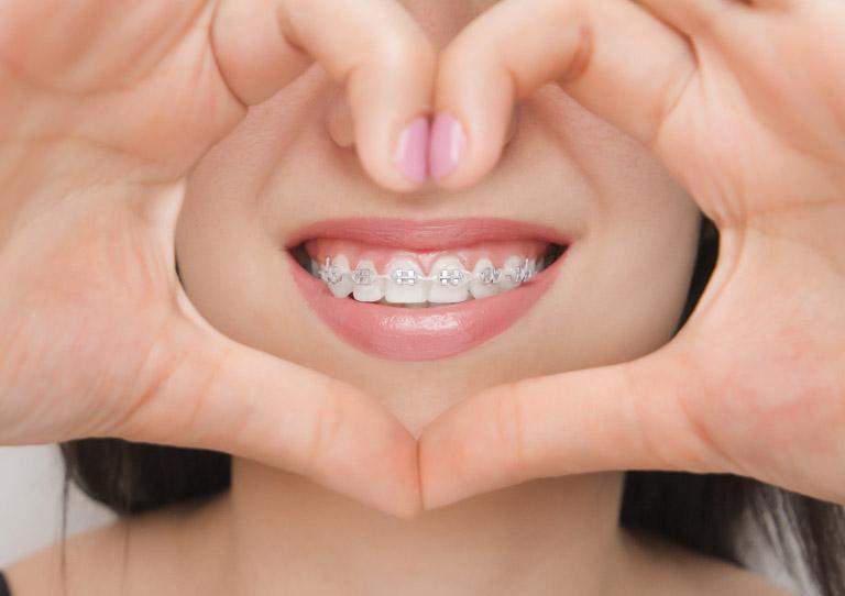 Ortodoncia acelerada o corticotomía - Ortodoncia en Avilés - Suárez Solis