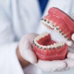 Ortodoncia acelerada o corticotomía - Ortodoncia en Avilés - Suárez Solís - Clínica dental en Avilés