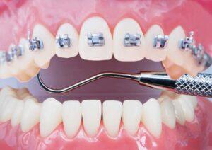 cuanto dura un tratamiento de ortodoncia. ortodoncia en avilés. invisalign