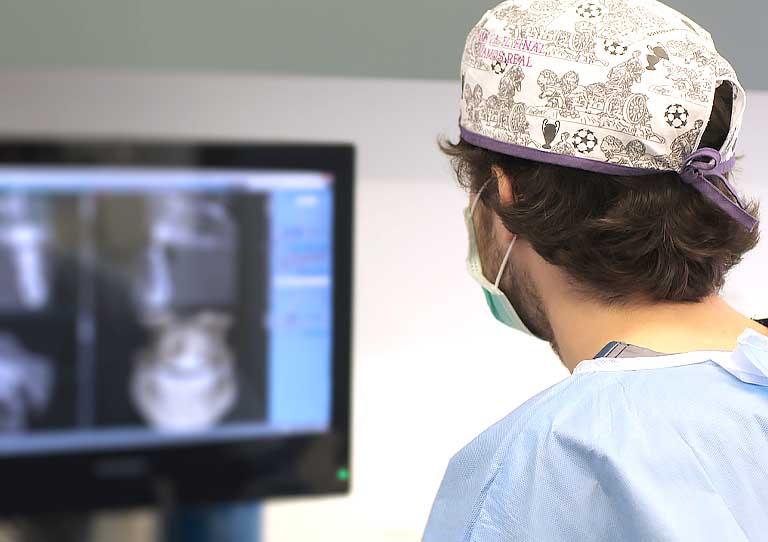 implantes cortos en clínica Suárez Solís, expertos en implantes dentales en Avilés. Dentistas