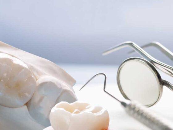 reendodoncia. clínica dental en avilés. dentista experto en odontilogía conservadora