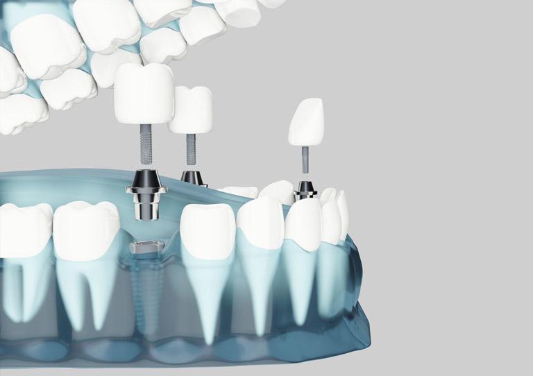 ¿Qué hacer ante dolor en un implante dental? Suárez Solís - Implantes dentales en Avilés