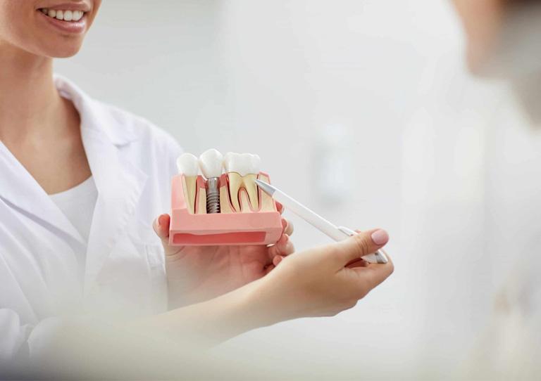 Ortodoncia e implantes dentales - Resolvemos tus dudas - Especialistas en Ortodoncia en Avilés- Suárez Solís.jpg