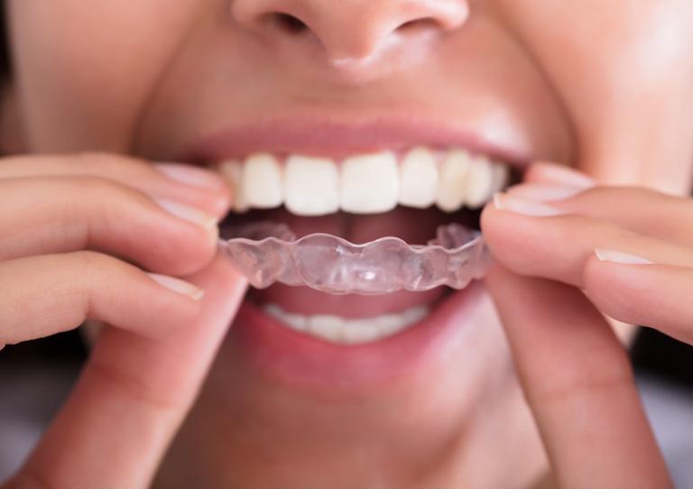 Corregir los dientes sin brackets ¡Es posible! Ortodoncia invisible en Avilés
