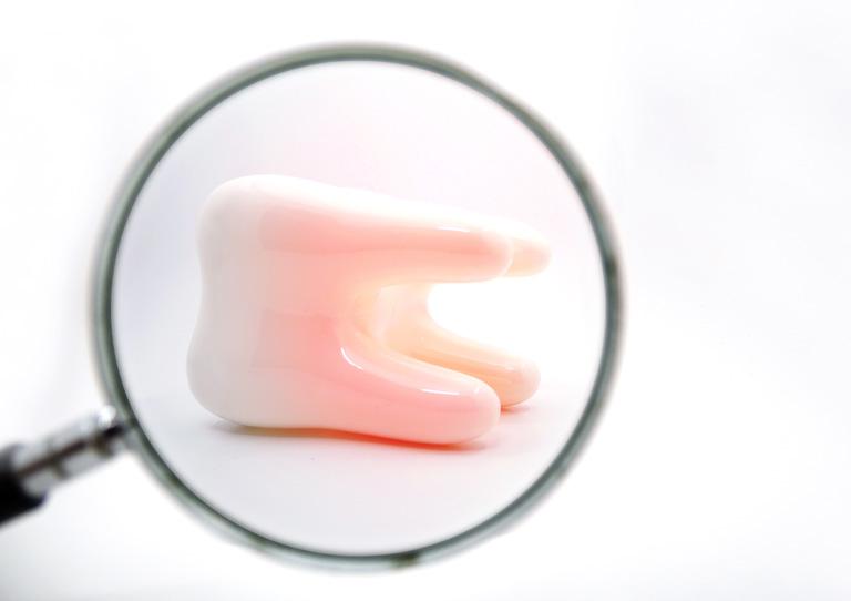 Muelas del juicio - Cuándo hay que quitarlas - Suárez Solís, tu dentista en Avilés