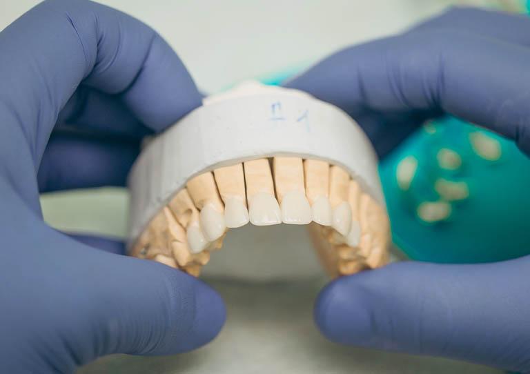 todo sobre carillas dentales.. dentistas en Avilés Suárez Solís