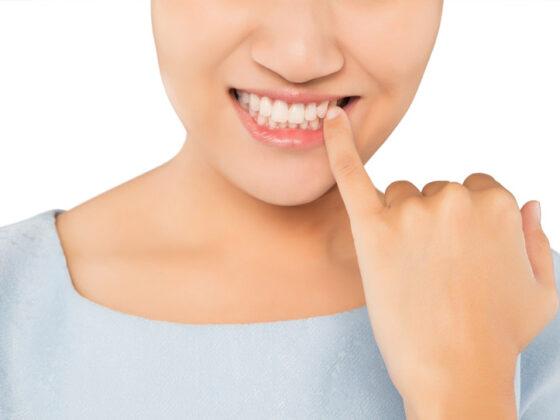 encías retraidas o recesión dental. Dentistas en Avilés