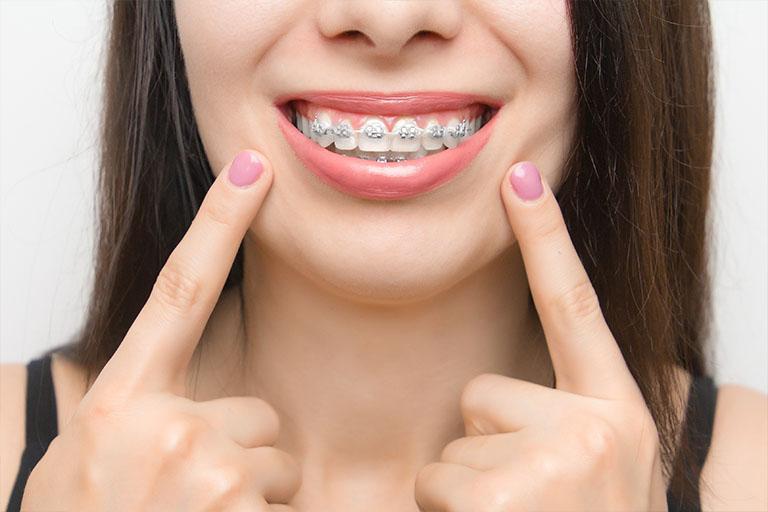 Clínica dental suarez solís. Existen muchos tipos distintos de ortodoncia para adultos