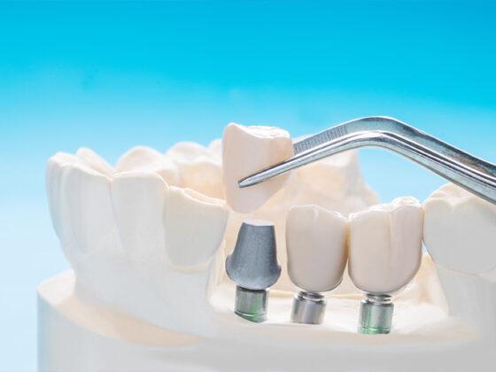 Clínica dental suarez solís. La osteointegración es una parte vital de un implante dental