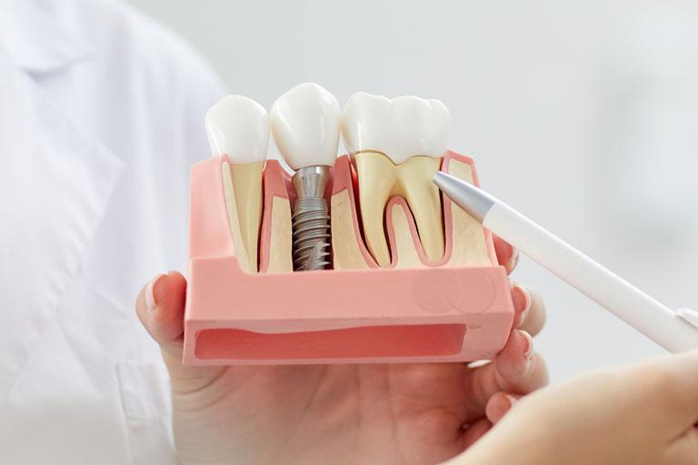 dentista en avilés explicando cómo afectan las enfermedades periodontales sobre la colocación de implantes