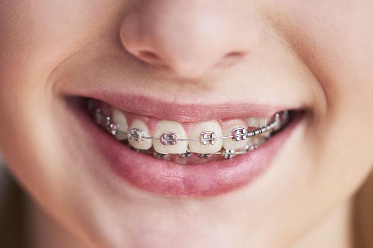 los brackets estéticos son un tipo de ortodoncia para niños muy habitual
