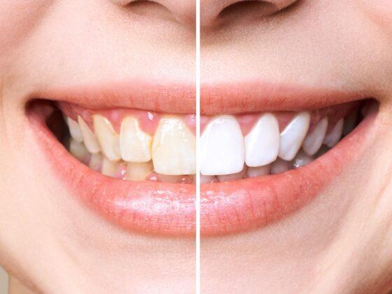 dentistas en aviles realizando un blanqueamiento dental después de una ortodoncia