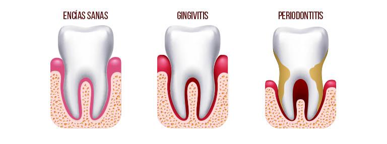 Las distintas fases de las enfermedades periodontales. Durante la Periodontitis, se pueden perder piezas dentales