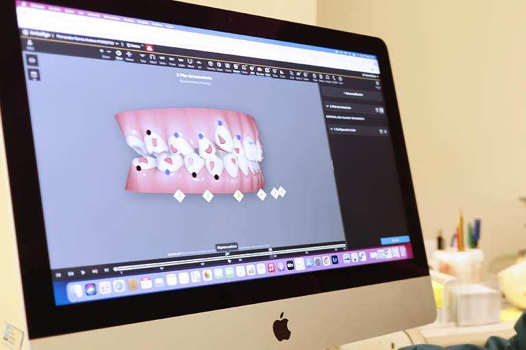 Gracias a los ataches de Invisalign, nuestros expertos en ortodoncia invisible en Avilés pueden realizar movimientos de ortodoncia mucho más complejos y precisos