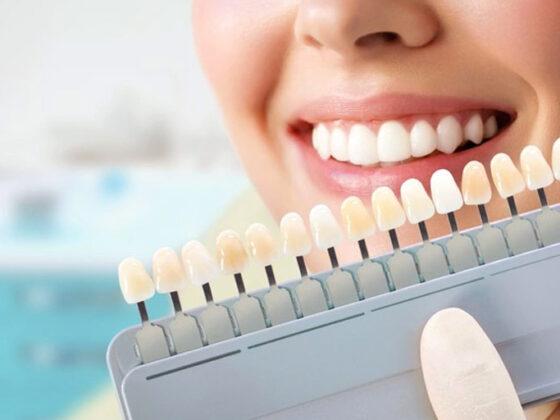 Suarez Solís. Las manchas dentales pueden producirse por varios motivos